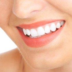 Albirea dinților în Clinica Dentară Ortodent