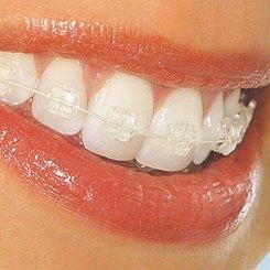 Incidența problemelor ortodontice în țara noastră