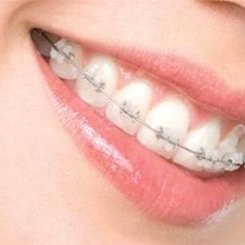 5 motive să porți un aparat dentar