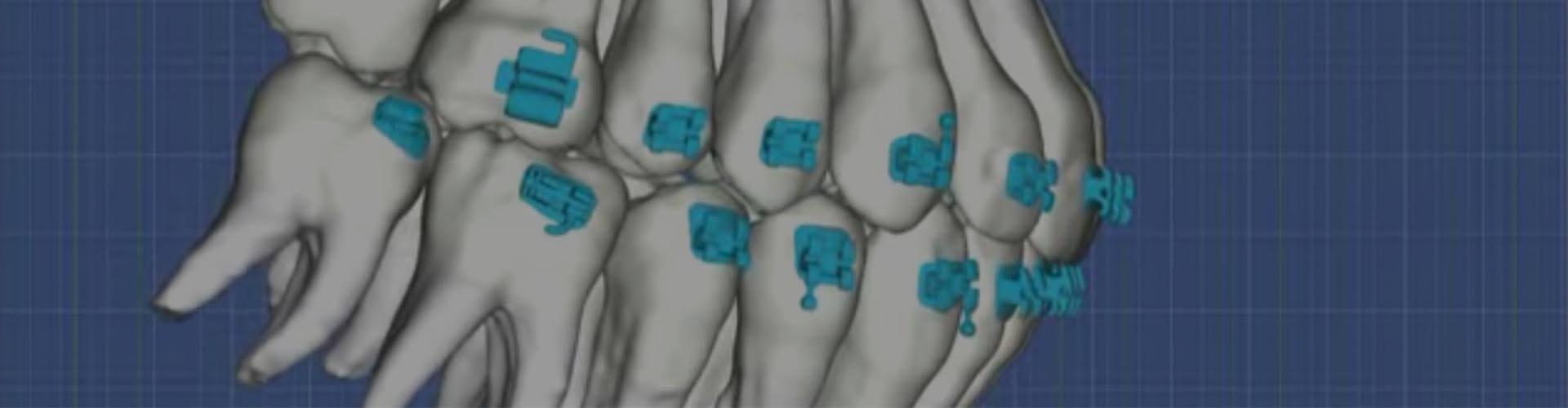 Redefinirea ortodonției cu ajutorul SureSmile